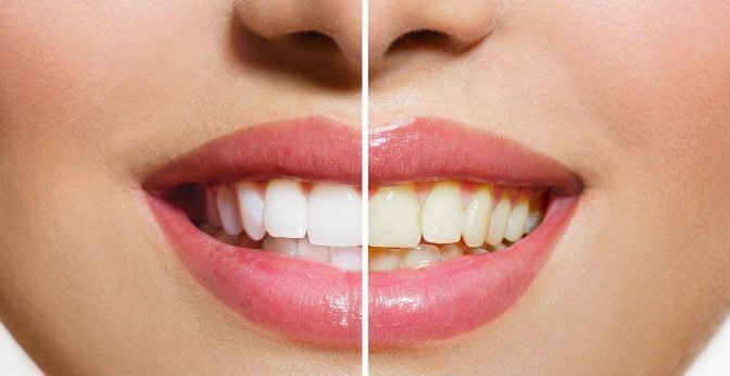 Top 5 Most Effective Teeth Whitening Home Kits 2019