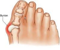 A bunion on someones right foot