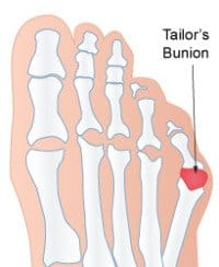 A Tailors Bunion (Also known as a bunionette)
