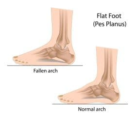 Flat feet and normal feet compared