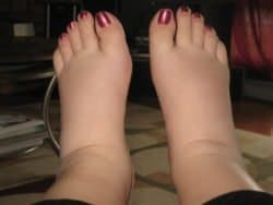 A woman with swollen feet