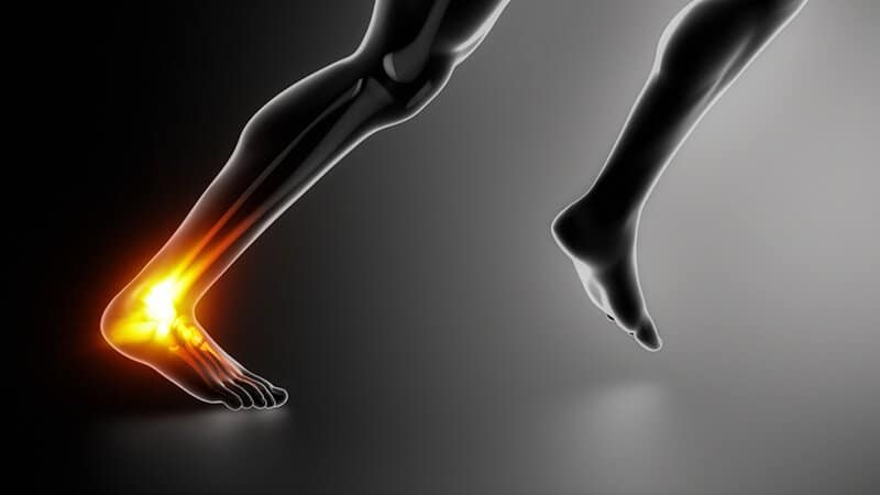 The Best Shoes For Achilles Tendonitis this 2019