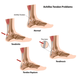 A diagram showing the different types of Achilles tendonitis