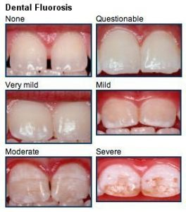 benefits of fluorosis2